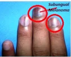 subungual melanoma pictures prognosis treatment