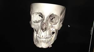 Orbital Floor Fracture With Entrapment by Base Ball Hit Left Face Fracture Just Below The Eye Ball Compare