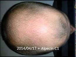 Pumpkin Seed Oil Dht Topical by Alopecia Mpb Before U0026 After 3 Months Youtube