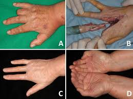 Nail Bed Melanoma by Current Surgical Management Of Acral Lentiginous Melanoma Intechopen