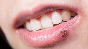 Viral Shedding Herpes Definition by Herpes Simplex Causes Symptoms And Diagnosis