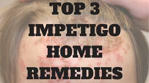 Impetigo Home Treatment Top 3 Impetigo Home Reme s