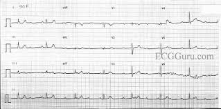 plete AV Block With Junctional Escape Rhythm