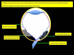 MR Imaging Of Primary Choroidal Melanoma