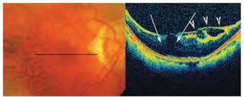 Color Fundus Photographs Of A High Myopic Patient With Mild Foveoschisis The Longitudinal B