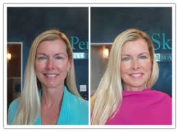 Pumpkin Enzyme Peel Before And After by Uncategorized Skin Perfect