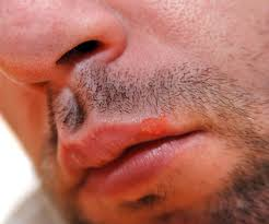 Viral Shedding Herpes Simplex by Concurrent Oral Herpes And Herpes Infection