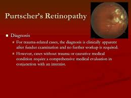 Grand Rounds Purtschers Retinopathy