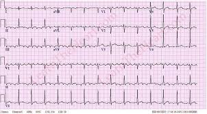 Atrial Flutter with 3 1 Conduction ECG 1