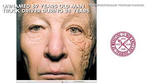 This Man Has The Left Side Of His Face Damaged By The Sun - Video ... Family Of Dudley Truck Driver Killed In M6 Accident Devastated Ohio Accused Being A Serial Killer Sault Star California Gets Maximum Punishment Wythe Abduction The Truck Stop Killer Gq Driver Temporary Staffing Agencies Youtube Vampire Kidnapping Women Enters Plea Who Caused Paoli Bridge To Collapse Apologizes News Trucker Uses Raspberry Pi To Connect His Big Rig Make Nyc Man Charged Cnection With Tow Drivers Death Nbc Ice Cream Child Icement Blames Brakes For Riyadh Tragedy Middle East