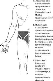 Pelvic Floor Tension Myalgia by Chronic Pelvic Pain Pelvic Floor Problems Sacro Iliac
