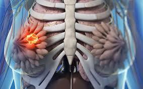 pose d une chambre implantable cool of pose de chambre implantable chambre