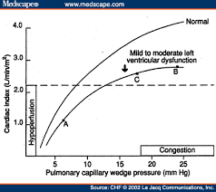 High Ceiling Loop Diuretics Adverse Effects by Balancing Diuretic Therapy In Heart Failure