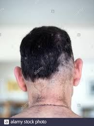 bad haircut high resolution stock photography and images alamy