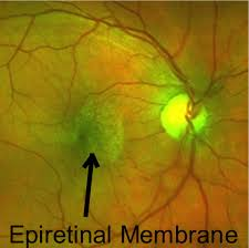 Epiretinal Membrane Retinal Photo Austin Eye Doctors Master Associates Resized 600