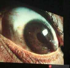 Iris Prolapse Shape Of The Pupil Is Altered Can Occur Following