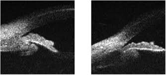 Ultrasound Biomicroscopy Was Significant For Anterior Rotation Of The Ciliary Body With Choroidal Effusion But