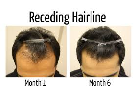 Rogaine Second Shedding Phase by Pregnancy And Hair Loss Treatments The Low Down For Men And Women