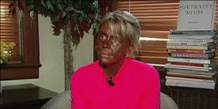 White Women Are Still Using Tanning Beds Despite Cancer Risks