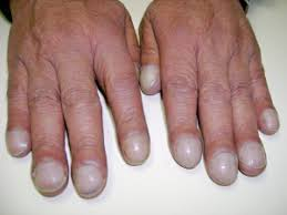 Nail Bed Melanoma disorders of the nail musculoskeletal medicine for medical