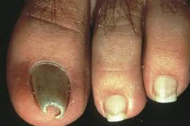 what are pincer nails health nails magazine