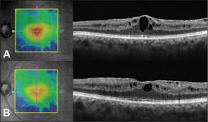 A Macular Edema And Residual Epiretinal Membrane After Pars Plana Vitrectomy