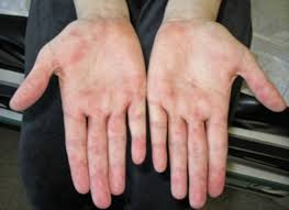 Cyanotic Nail Beds by Pediatric Systemic Lupus Erythematosus Articles Pediatrics In