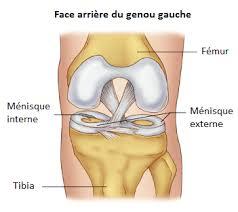 les ménisques les types de lésion douleurs menisque menisque