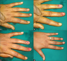 nail bed injuries and deformities of nail bharathi r r bajantri b