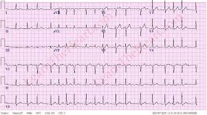 Atrial Fibrillation with RVR ECG 1