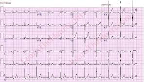 Left Ventricular Hypertrophy LVH ECG Example 3