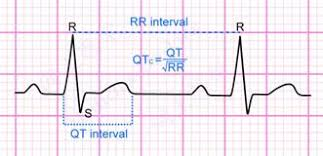 rr interval normal range a pictorial primer