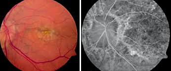 Choroidal Neovascularization Secondary To Myopia Infection And Inflammation
