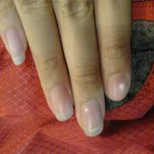 ridges and white spots on fingernails awesome nail