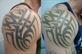 The Cost Of Laser Tattoo Removal Cover Ups Vs Fading