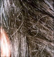 poux et lentes traitement anti poux dr abimelec