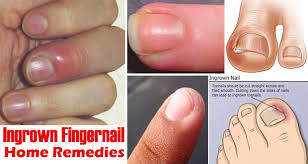 to get rid of ingrown fingernails
