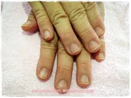 Cyanotic Nail Beds by Bed Nails Images