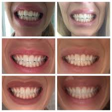 Dental Front Desk Jobs Nj pearly whites the multi specialty family dentist 15 reviews