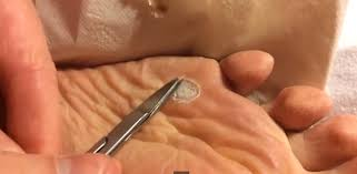Plantar Wart Causes Removal Home Reme s
