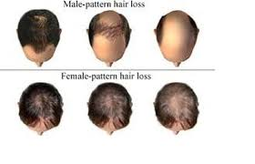 Baldness Treatment Hair Loss Treatment