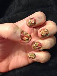 how to treat an infected fingernail bed how you can do it at
