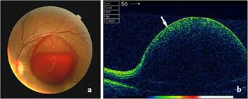 Macular Hole Secondary To Valsalva Retinopathy After Doing Push Up