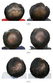White Pumpkin Seeds Testosterone by The Lie Inside The Pumpkin Seed Oil Hair Loss Study Perfect Hair
