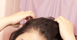 Rogaine Second Shedding Phase by Hair Thinning Prp Injections Treatment Experience