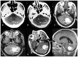 Magnetic Resonance Imaging Of A 58 Year Old Male With Hemorrhagic Choroid Plexus Papilloma White Arrow In The Cerebellar Parenchyma