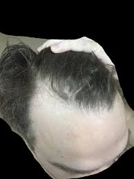 Rogaine Second Shedding Phase by Fue Vs Fut Final Density Hairlosstalk Forums