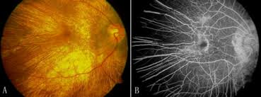 Fundus Photographs Of The Right Eye 38 Year Old Choroideremia Affected