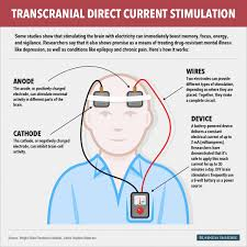 Transcranial Direct Current Stimulation TDCSrTMS