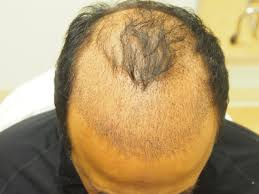 Propecia Shedding After 1 Year by Hair Loss Causes Archives Page 47 Of 422 Wrassman M D Baldingblog